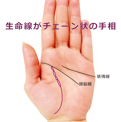 生命線がチェーン状の手相