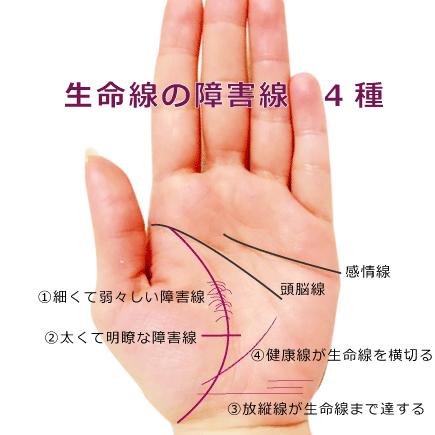 生命線の障害線4種
