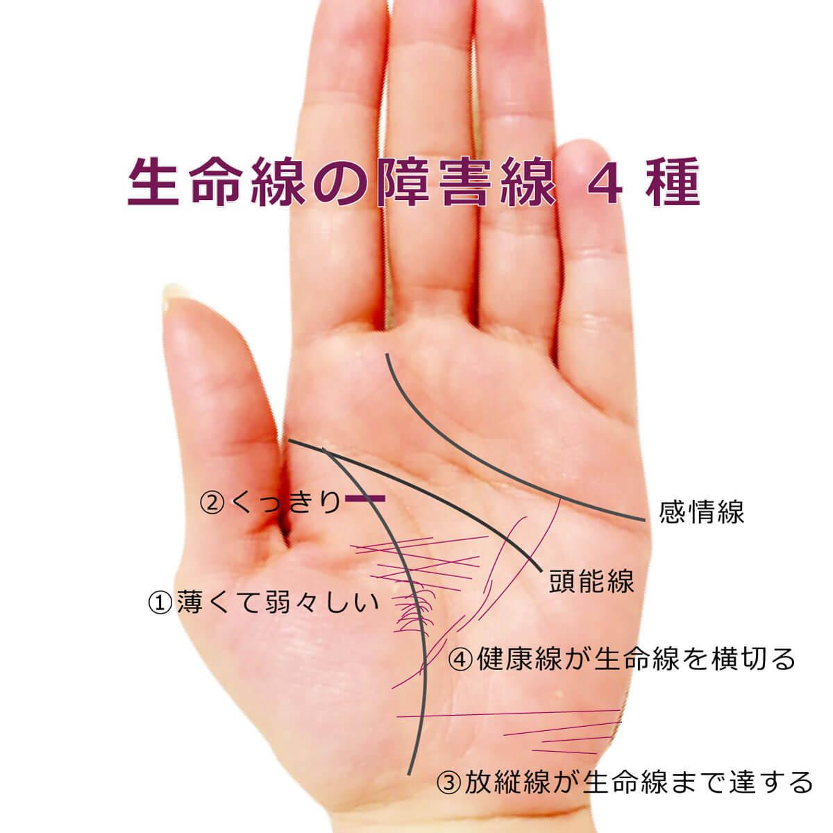 生命線に障害線妨害線が遮る手相