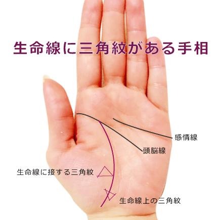 生命線にトライアングル三角紋