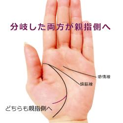 分岐した生命線の先がどちらも親指側に向かう手相