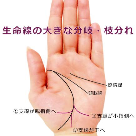 生命線の大きな枝分かれ3種
