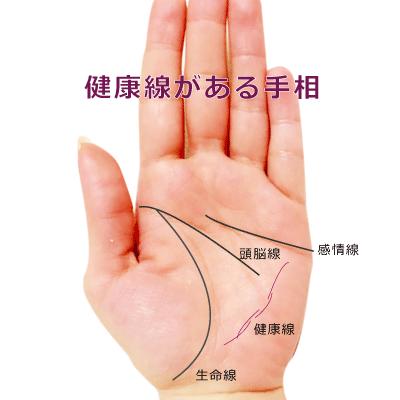 手相の健康線