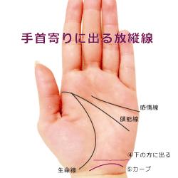 手首の上に出る放縦線