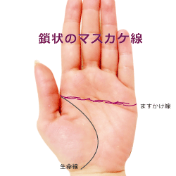 鎖状のますかけ線